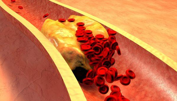 New Cholesterol Lowering Jab May Help Save Thousands from Heart Disease